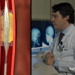 Tratamiento para la parálisis facial: injerto de músculo