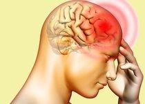Cefaleas: tipos, diagnóstico y tratamientos