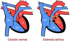 Valvulopatía aórtica (estenesosis verticada severa), Enfermedades y su tratamiento