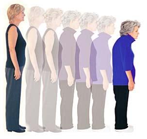 Tratamiento farmacológico para la osteoporosis y cómo saber si es eficaz