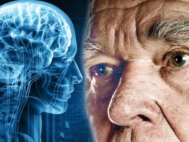 El Envejecimiento: Demencias Asociadas