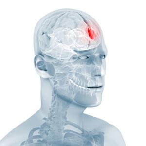 Cómo combatir los tumores cerebrales, Enfermedades y su tratamiento