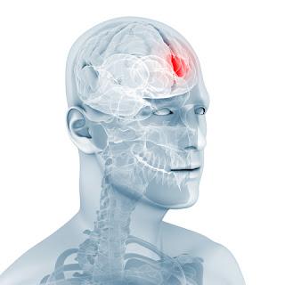Cómo combatir los tumores cerebrales