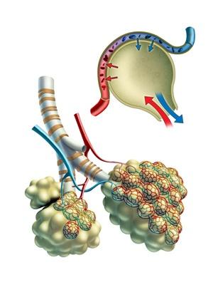 Enfisema pulmonar, nuevas investigaciones