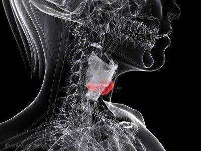 Distintos tipos de cáncer de tiroides