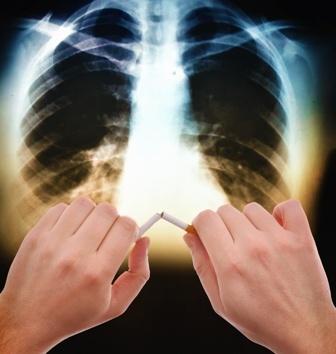 Enfisema pulmonar y cáncer de pulmón