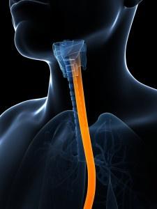 Primera cirugía de tiroides transaxilar utilizando técnica endoscópica realizada en España