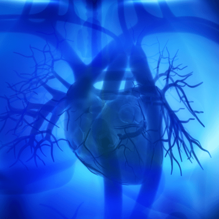 En qué consiste un bypass coronario