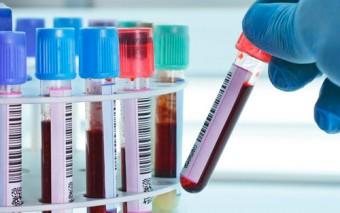 Posibles avances en la detección precoz de cáncer de ovario