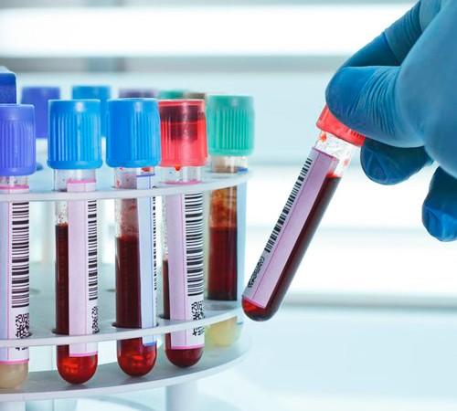 Posibles avances en la detección precoz de cáncer de ovario, Enfermedades y su tratamiento