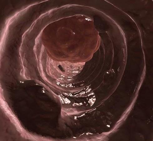 cáncer de colon2