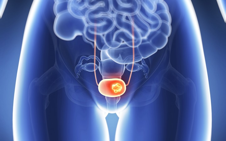 cáncer utero