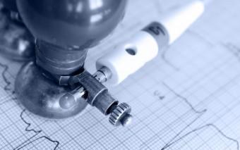 Implantación de Holter subcutáneo para arritmias cardiacas