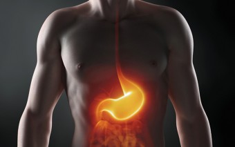 Pautas dietéticas en el estreñimiento